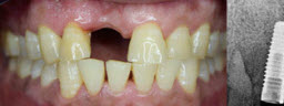 Front Tooth Implant - Before