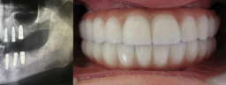 Full Mouth Rehab with Dental Implants & Malo Bridge with Metal Ceramic Crowns - After
