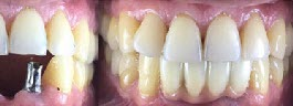 Lower Dental Implants - After