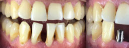 Lower Dental Implants - Before