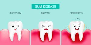 Gingivitis - Periodontitis