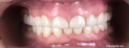 Smile Makeover with Full Mouth Emax Crowns and Bridges - After