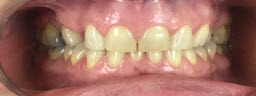 Smile Makeover with Full Mouth Emax Crowns and Bridges - Before