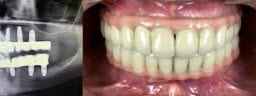 Full Mouth Rehabilitation - After