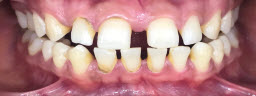 Gap Closure done with Metal Free Crowns in Both Upper and Lower Arches - Before