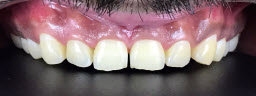 Zoom Teeth Whitening - Before