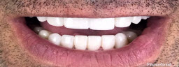 Full Mouth Rehabilitations with Metal Free Crowns - After