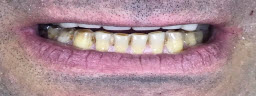 Full Mouth Rehabilitations with Metal Free Crowns - Before