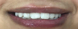 Zoom Teeth Whitening - After