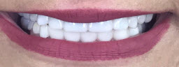 Full Mouth Rehabilitation done with Dental Implants and Metal Free Crowns - After
