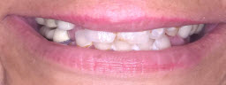 Full Mouth Rehabilitation done with Dental Implants and Metal Free Crowns - Before