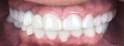 Full Mouth Rehabilitation with Dental Implants and Metal Free Crowns - After