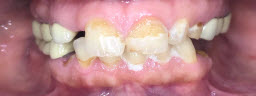 Full Mouth Rehabilitation with Dental Implants and Metal Free Crowns - Before