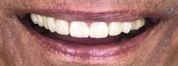 Smile makeover for a 80 years old. Hollywood aspirations.. - After