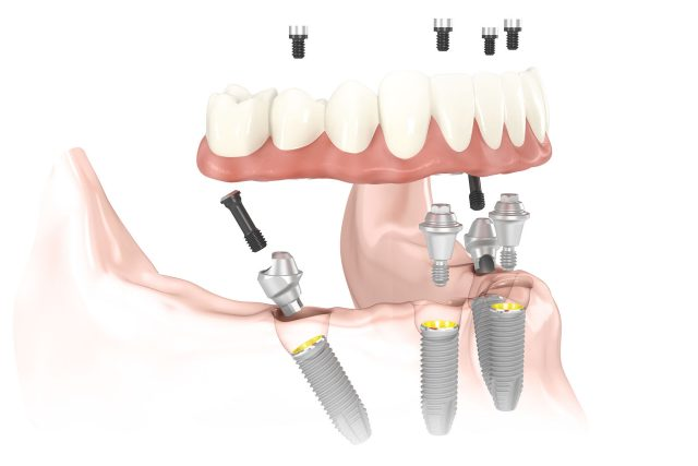 Guided Implant Surgery
