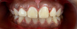45 Minutes Instant Zoom Teeth Whitening - After