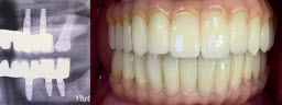 Full Mouth Rehabilitation with 12 Implants and 24 Units of Fixed Teeth - After