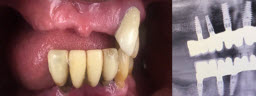 Full Mouth Rehabilitation with 12 Implants and 24 Units of Fixed Teeth - Before