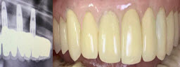 Full Upper Arch Rehabilitations Implants - After