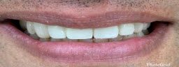 Smile Makeover with Whitening and Veneers Crowns Combination In 2 Visits Over 10 Days - After