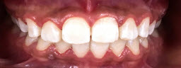 7 shades jump with Zoom AP instant Teeth Whitening - After