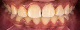 7 shades jump with Zoom AP instant Teeth Whitening - Before
