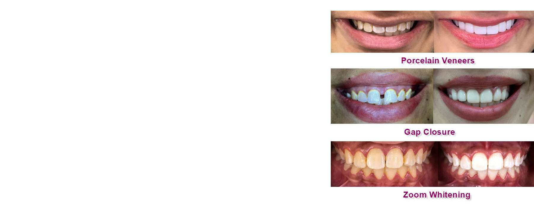 Dr. Kathuria's Dental Cases