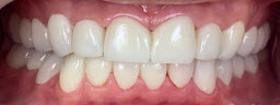 Full Mouth Rehabilitation To Correct Generalised Attrition of Teeth and Bite Collapse. Metal Free Zirconia Crowns - After