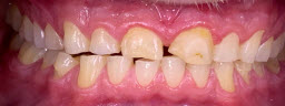 Full Mouth Rehabilitation To Correct Generalised Attrition of Teeth and Bite Collapse. Metal Free Zirconia Crowns - Before