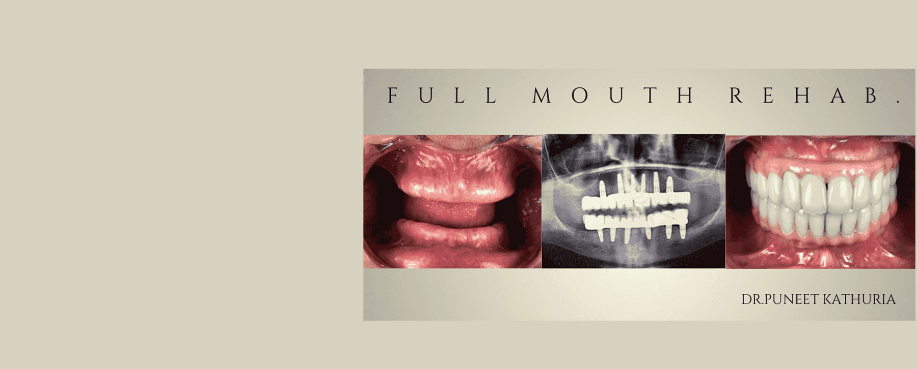 Full Mouth Rehabilitation with 12 Implants