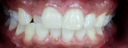 Before and After Zoom Whitening - After