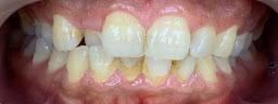 Before and After Zoom Whitening - Before
