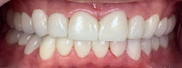 Full Mouth Rehabilitations with metal free crowns and bridges - After