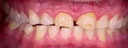 Full Mouth Rehabilitations with metal free crowns and bridges - Before