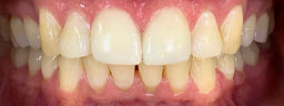Gap closure treatment with porcelain veneers - After
