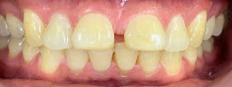 Gap closure treatment with porcelain veneers - Before