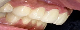 Jetting out teeth correction with intentional RCT and Metal free Crowns - After