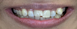 Smile Makeover with metal free crowns - Pre