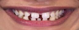 Smile+Makeover+Gap+Closure+with+Porcelain+ Veneers+Before+Image